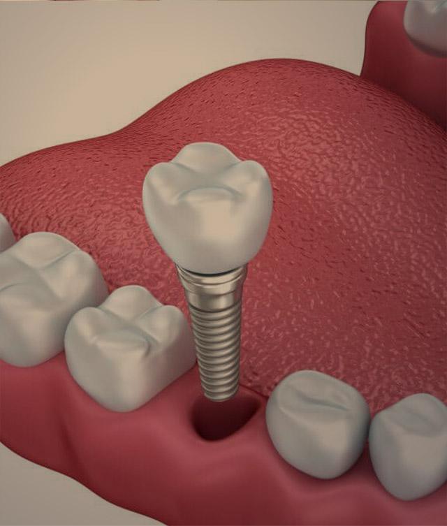 dentalimplants--img