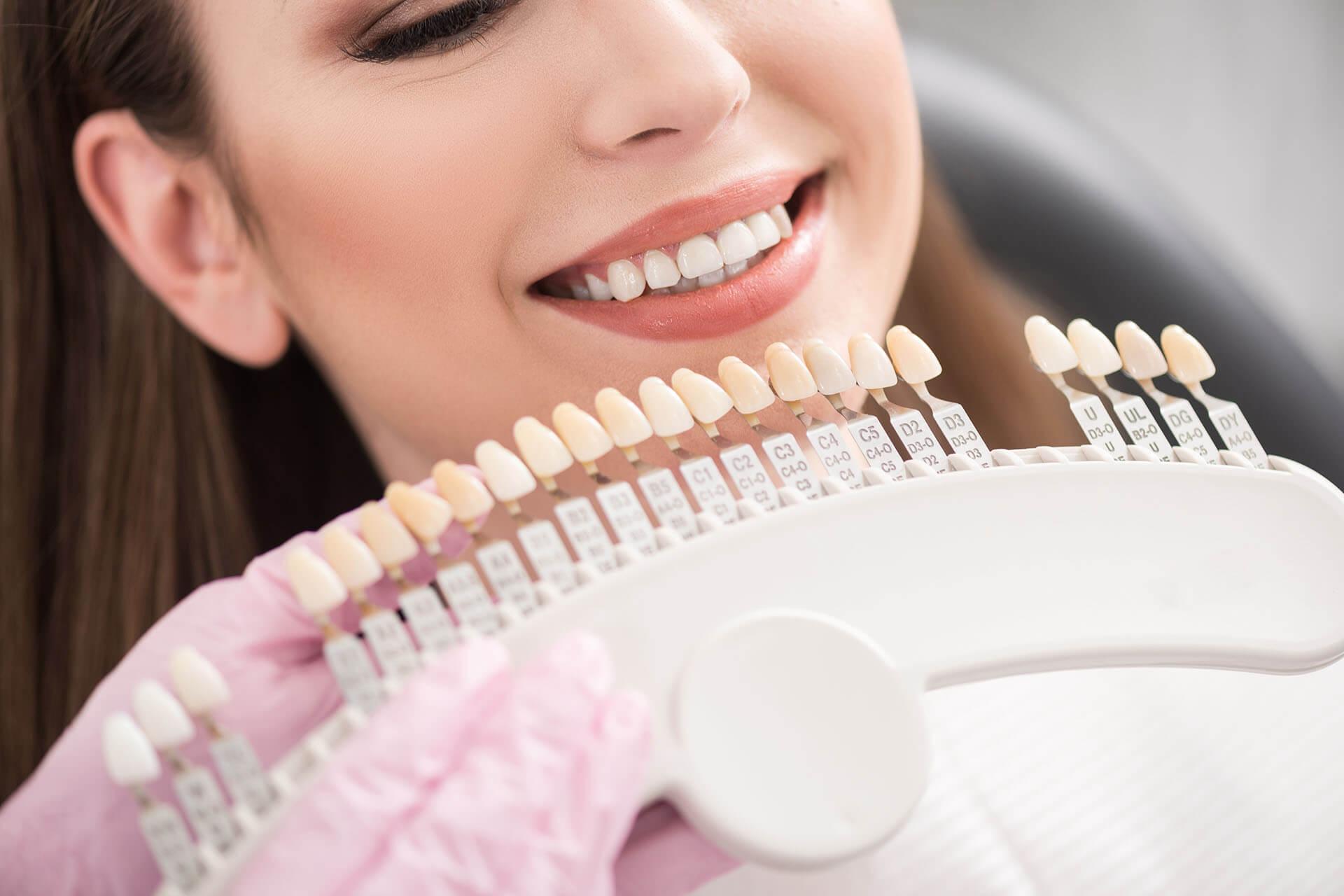 Fluorosis Stains – Will Dental Veneers or Teeth Whitening Help?